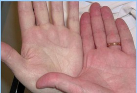 Санатории по лечению артрита у детей